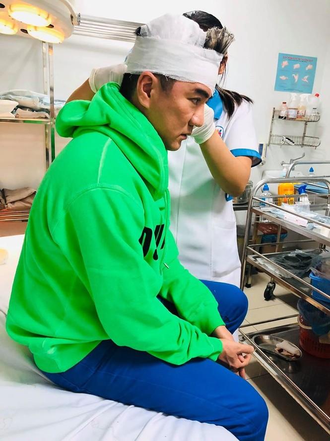 Đàm Vĩnh Hưng gặp tai nạn trên sân khấu, phải vào viện băng bó đầu - ảnh 4