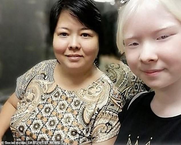 Diện mạo khác lạ của hai chị em người Kazakhstan bị bạch tạng gây 'sốt' - ảnh 8