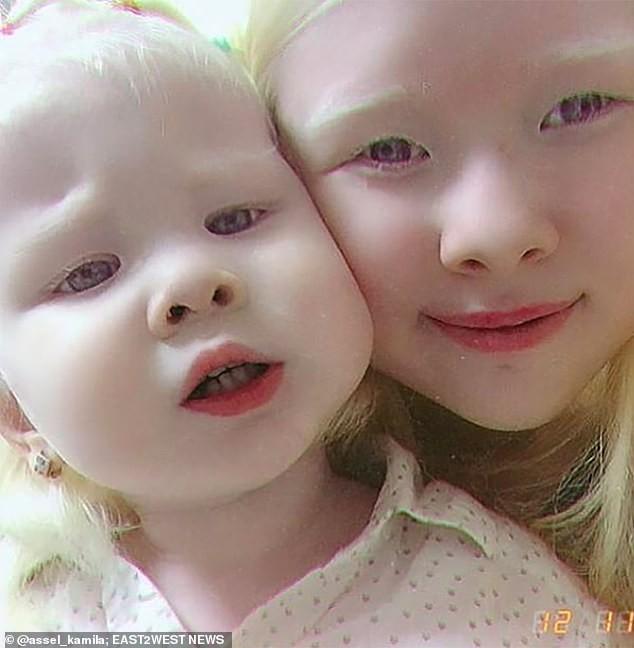 Diện mạo khác lạ của hai chị em người Kazakhstan bị bạch tạng gây 'sốt' - ảnh 6