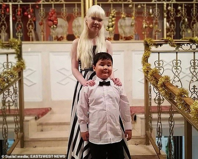 Diện mạo khác lạ của hai chị em người Kazakhstan bị bạch tạng gây 'sốt' - ảnh 7