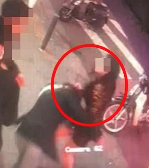 Người mẫu khiếm thính Hàn bị đánh đến chấn động não vì vô tình va phải người phụ nữ  - ảnh 2