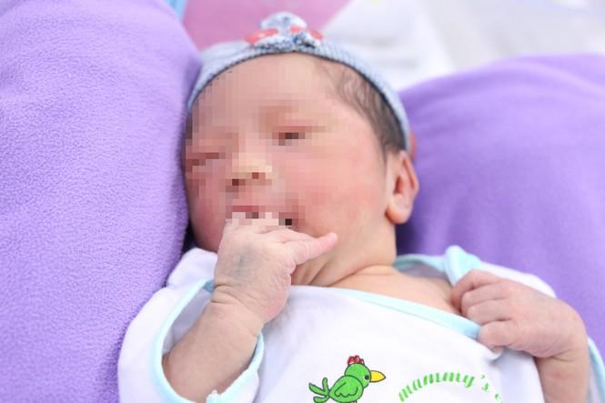 Cứu được bé sơ sinh hoại tử gần hết dây rốn từ trong bụng mẹ - ảnh 1