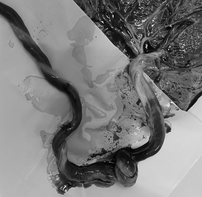 Cứu được bé sơ sinh hoại tử gần hết dây rốn từ trong bụng mẹ - ảnh 2