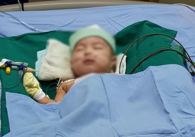 Vá lỗ thông liên thất cực lớn, cứu sống bé trai 5 tháng tuổi - ảnh 1