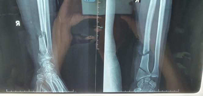Dùng máy cưa tỉa cây, người đàn ông bị cắt đứt gần lìa cổ tay và cổ chân - ảnh 1