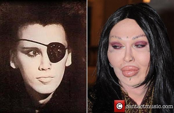 Không ai còn có thể nhận ra nam ca sĩ điển trai Pete Burns của ban nhạc Dead And Alive. Anh là người đồng tính, nhưng không muốn chuyển giới, anh dùng phẩu thuật thẩm mỹ để