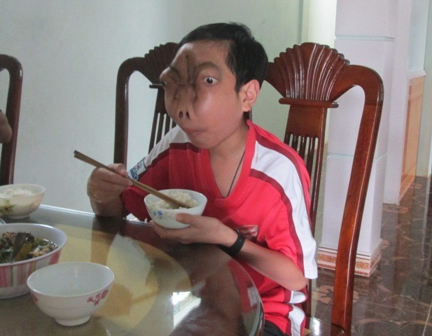 Mỗi bữa ăn Tuấn ăn được 2 bát cơm và cậu bé có thể tự ăn, không như 4 năm qua nhờ bàn tay của bố mẹ và mỗi bữa chỉ vài thìa cháo
