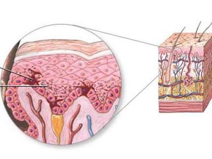 Gia tăng sắc tố melanin làm thâm da