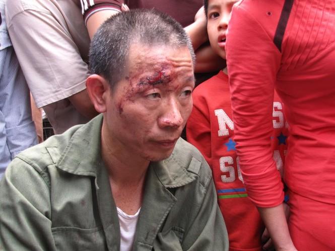 Bộ Công an chỉ đạo làm rõ 'dân tố công an đánh người' - ảnh 2
