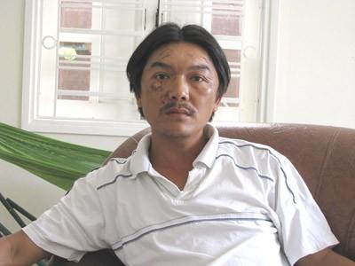 Nguyễn Văn Cường với khuôn mặt đầy sẹo sau tai nạn kinh hoàng