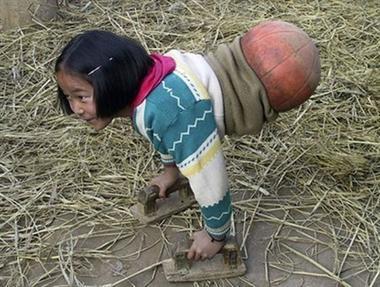 Để thích nghi với cuộc sống sau tai nạn, em đã nỗ lực học cách sử dụng đôi tay để di chuyển cơ thể, với sự hỗ trợ của một trái bóng rổ. Vì lẽ đó, người ta gọi em là cô bé bóng rổ