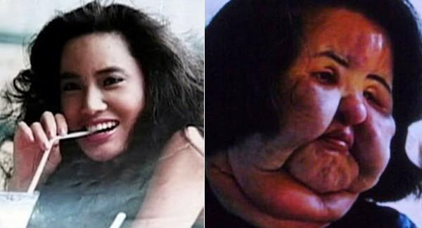 Nữ người mẫu Hàn Quốc Hang Mioku khiến nhiều người không khỏi bàng hoàng vì gương mặt biến đổi quá nhiều. Từ một người mẫu xinh đẹp, Mioku bắt đầu tìm đến phẫu thuật thẩm mỹ năm 28 tuổi. Trải qua nhiều cuộc phẫu thuật ở Nhật, gương mặt cô bắt đầu xuất hiện di chứng: biến dạng, phù nề và xấu xí đi rất nhiều. Không dừng lại ở đó, để thỏa mãn cơn nghiện thẩm mỹ nhưng không đủ sức mua thêm silicon , cô dùng cả dầu ăn để thay thế. Bác sĩ đã lấy ra từ gương mặt cô 60 gram chất lạ và 200 gram từ cổ của cô Mioku. Cô còn được xếp vị trí đầu tiên trong những
