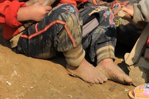 Những đôi chân trần nứt nẻ của trẻ em bản Mông huyện Mường Lát lang thang trên triền đồi giá lạnh