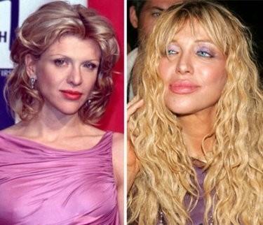 Courtney Love chia sẻ, cô đã rất hối hận vì đã nâng mũi và bơm môi, gương mặt xinh đẹp ngày xưa nay không còn nữa. Hai bên mắt cô bị lệch xuống, môi và toàn gương mặt đều bị sưng phù