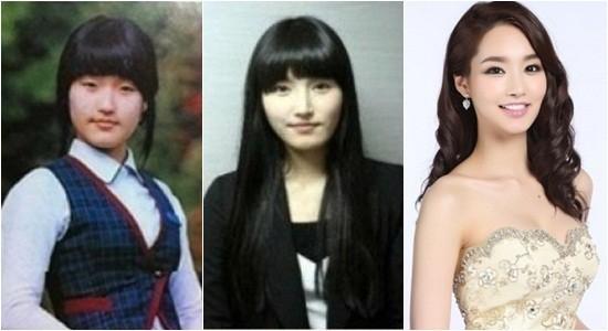 Hoa hậu Hàn Quốc 2012 Kim Yu Mi cũng từng khiến cư dân mạng dậy sóng khi những bức ảnh thời trung học của cô được công bố. So với nhan sắc hiện tại, cô bé Kim Yu Mi lúc trước có phần mũm mĩm và xấu xí hơn