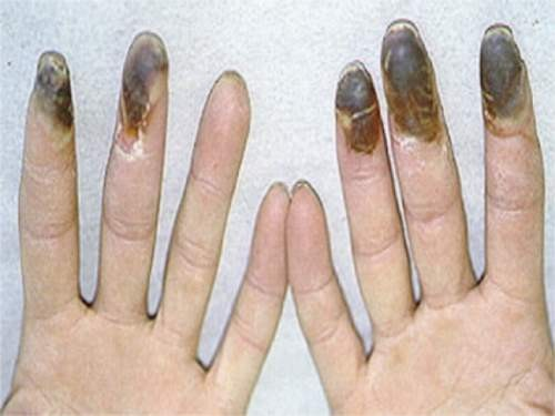 Chẩn đoán hình ảnh tổn thương và các đầu ngón tay hoại tử trong bệnh Buerger