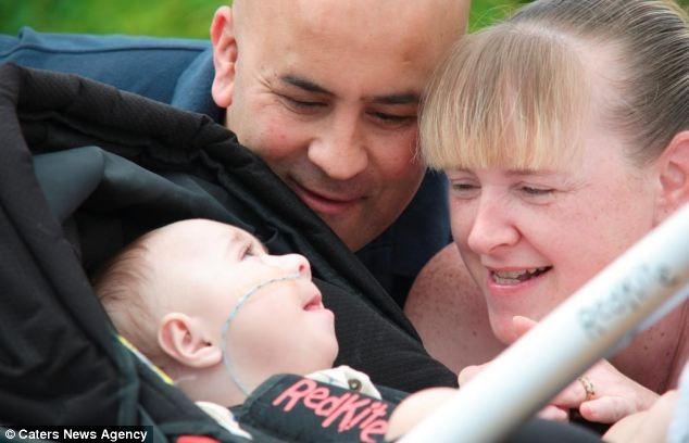 Cha mẹ bé Jess Kerr, anh Simon và chị Melanie phải hô hấp nhân tạo cho con 5 lần mỗi ngày