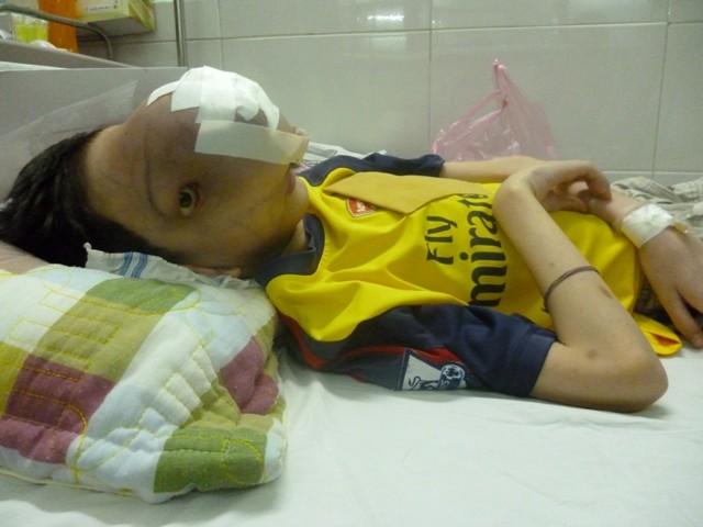 Khối u khiến cậu bé 4 năm sống trong đau đớn, khổ cực
