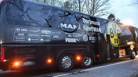 Ngôi sao Dortmund phải phẫu thuật sau vụ nổ bom xe buýt - ảnh 1