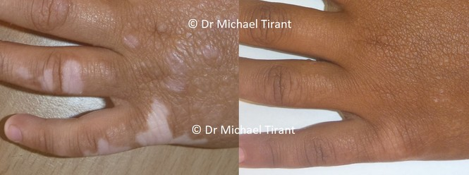 Điều trị bệnh bạch biến hiệu quả bằng thảo dược Vitilinex   - ảnh 1