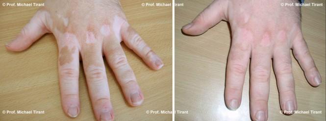 Giải pháp kết hợp điều trị hiệu quả bệnh bạch biến - ảnh 1