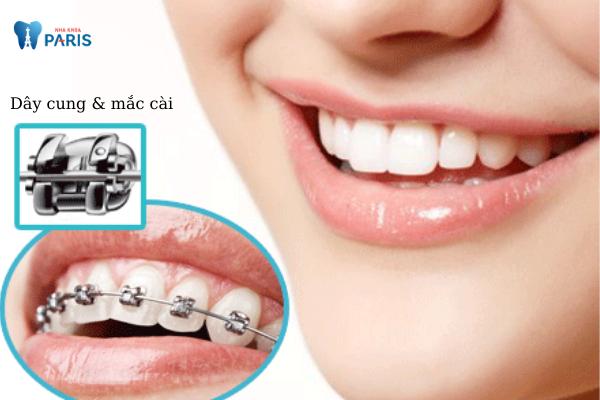 Nên lựa chọn niềng răng mắc cài kim loại thường hay tự buộc? - ảnh 1