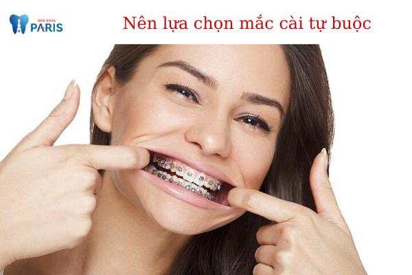 Nên lựa chọn niềng răng mắc cài kim loại thường hay tự buộc? - ảnh 3
