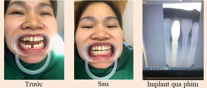 Trồng răng Implant – giải pháp toàn năng khi mất răng - ảnh 2