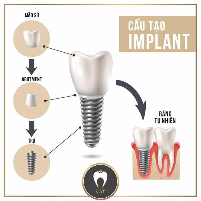 Trồng răng Implant – giải pháp toàn năng khi mất răng - ảnh 1