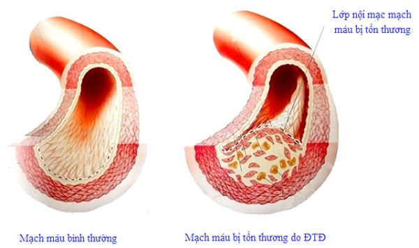 5 bí quyết vàng giúp người tiểu đường bảo vệ mình trong mùa dịch bệnh - ảnh 2