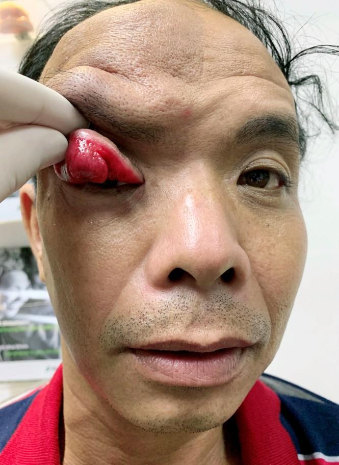 Cứu sống đôi mắt bị vùi lấp vì khối u chảy xệ đỏ tươi - ảnh 1