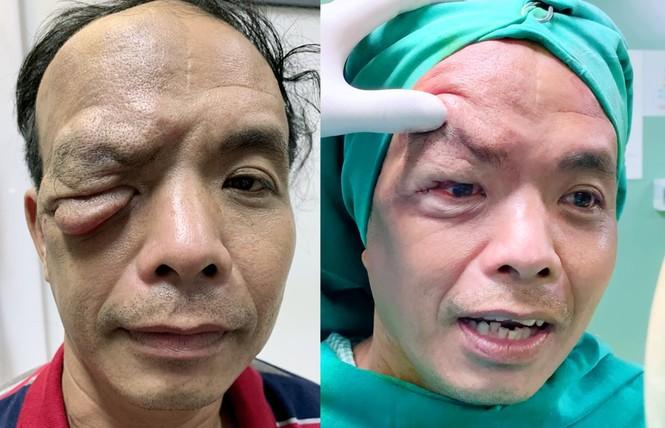 Cứu sống đôi mắt bị vùi lấp vì khối u chảy xệ đỏ tươi - ảnh 5