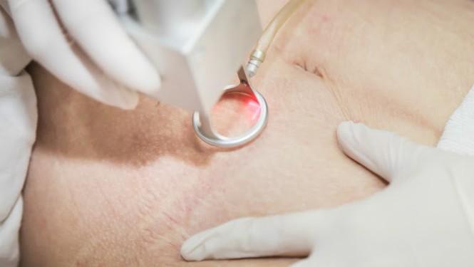 Phòng khám chuyên khoa thẩm mỹ JK độc quyền công nghệ trị rạn tái cấu trúc Healing Scar - ảnh 1