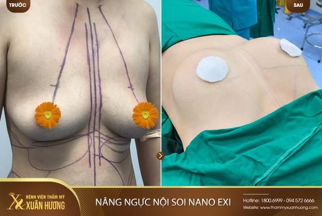 Giảm 50% nâng ngực nội soi NANO EXI tại Bệnh viện thẩm mỹ Xuân Hương - ảnh 3