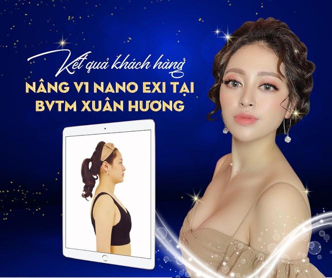 Giảm 50% nâng ngực nội soi NANO EXI tại Bệnh viện thẩm mỹ Xuân Hương - ảnh 5