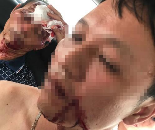 Côn đồ xông vào nhà chém, nổ súng khiến 3 người nhập viện - ảnh 1