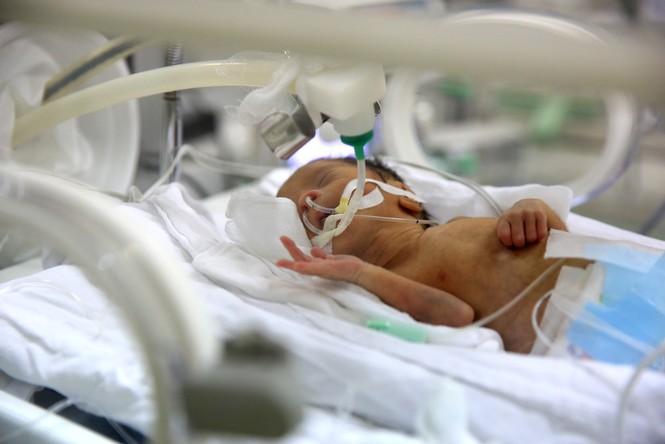 Nơi giành giật sự sống cho trẻ sinh non - ảnh 7