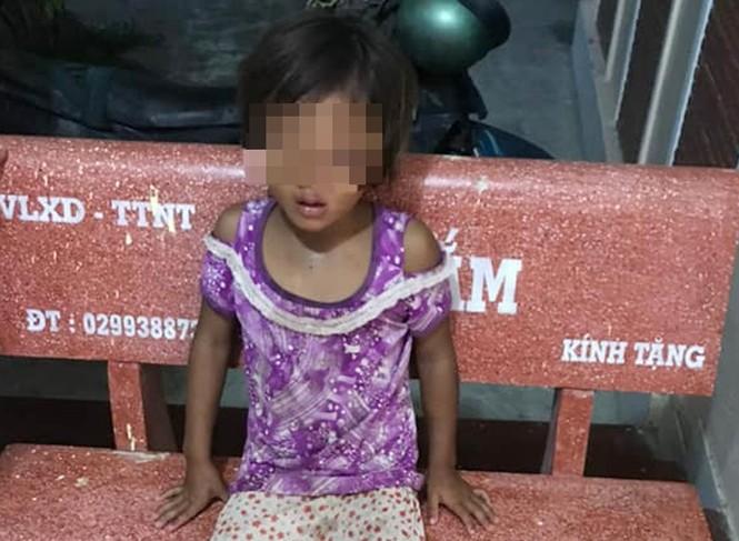 Sóc Trăng: Điều tra nam thanh niên đánh đập con gái 6 tuổi dã man - ảnh 3