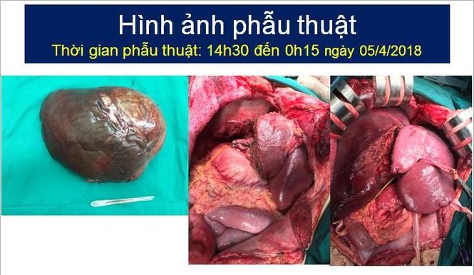 Bác sỹ đau đầu tính lượng máu cho ca cắt u gan khổng lồ - ảnh 1