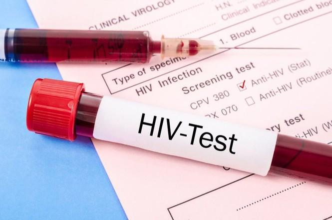 Gần 66% số ca nhiễm HIV do nguyên nhân này - ảnh 1