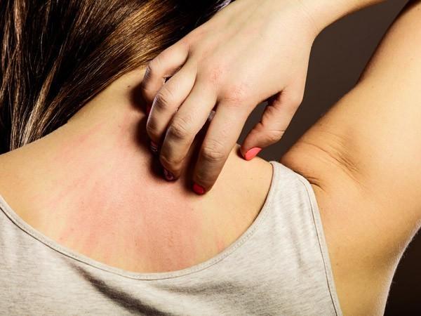 Dấu hiệu gan bị nhiễm độc và cách giải độc hiệu quả không phải ai cũng biết - ảnh 1