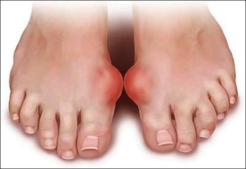 Dấu hiệu ở chân cảnh báo bệnh cực kỳ nguy hiểm, khám ngay kẻo muộn - ảnh 2
