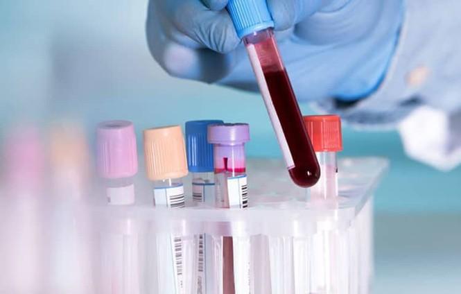 Xét nghiệm máu thông thường không thể phát hiện được HIV - ảnh 1