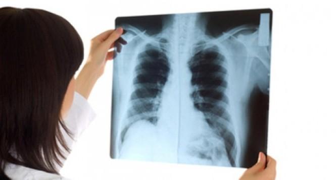 Đừng coi thường khi đau lưng, bởi có thể là dấu hiệu của ung thư phổi - ảnh 3