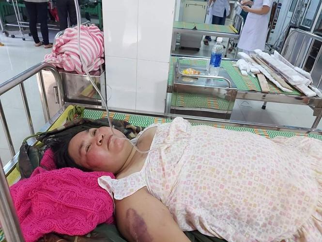 Người mẹ ôm con thoát nạn vụ sạt lở ở Quảng Nam - ảnh 1