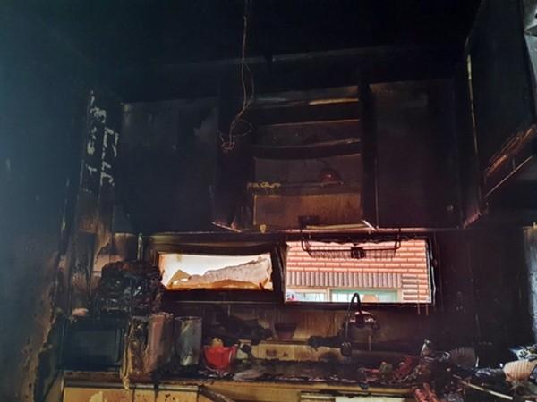 Hai anh em tự nấu mỳ gây cháy nhà, anh ôm lấy em để che chắn, còn mình chịu bỏng hết lưng - ảnh 1