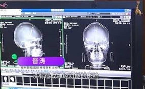 Bị đập đầu nên đi chụp não cho chắc, choáng váng phát hiện ra 2 cái kim nằm sâu trong não - ảnh 3