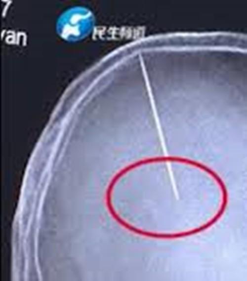 Bị đập đầu nên đi chụp não cho chắc, choáng váng phát hiện ra 2 cái kim nằm sâu trong não - ảnh 2