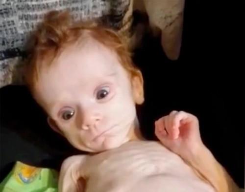 Bé gái sơ sinh bị mẹ nhét trong tủ và bỏ đói, sống sót kỳ diệu vì anh trai lén lấy đồ thừa cho ăn - ảnh 1