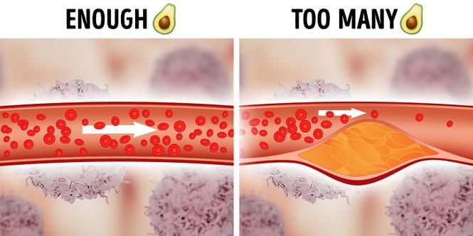 Thực phẩm tốt không nên ăn nhiều: Những loại thực phẩm tốt nhưng không nên ăn quá nhiều - ảnh 3